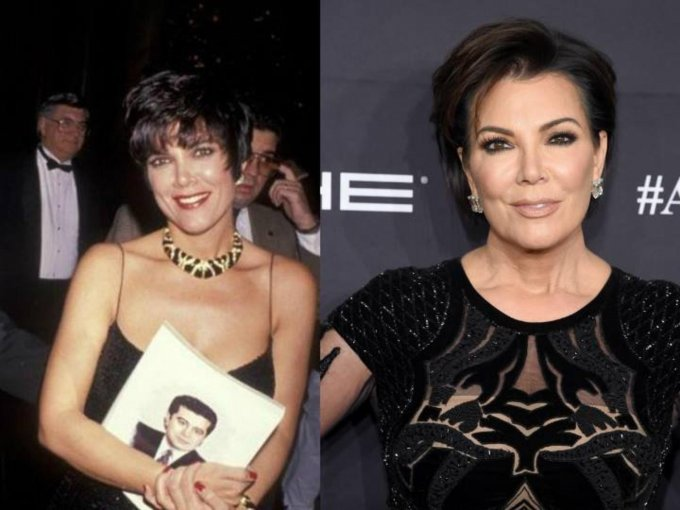 Ellos son los famosos que han roto récord en gastar miles de dólares en cirugías para lucir exactamente como quieren. Kris Jenner: más de 70 mil dólares y la suma sigue aumentando.