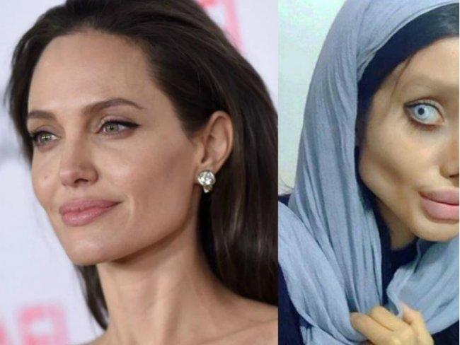 Joven se hizo 50 cirugías para parecerse a Angelina Jolie (FOTOS)