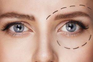 Botox para eliminar las ojeras, ¿cómo funciona?